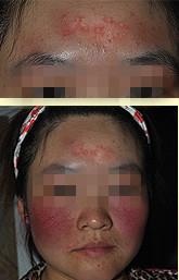 皮康王引发的激素依赖性皮炎治愈方法