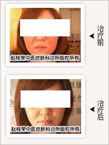 激素依赖性皮炎治愈照片