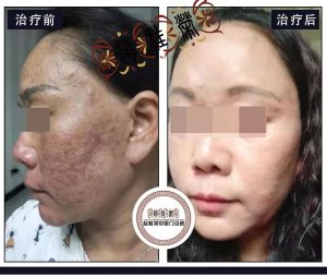 激素依赖性皮炎康复后,肌肤白嫩顺滑,艳丽无双!
