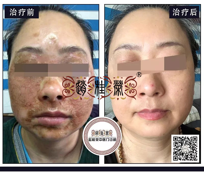 满脸红肿痘痘,痒得难以入睡?激素依赖性皮炎还能恢复水润白皙吗?