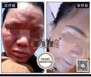 激素依赖性皮炎治愈后,皮肤居然可以这么白、这么嫩!