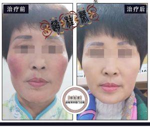 激素依赖性皮炎康复后,皮肤是这样的白、这样的美!