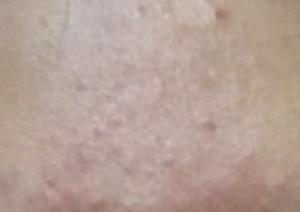 冬季皮肤干燥、发痒、掉皮屑,皮肤干燥该怎么办?