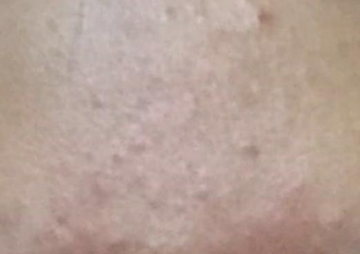 激素依赖性皮炎皮肤干燥怎么办