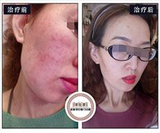 激素脸治疗方法总是不彻底?按照这个步骤,激素皮炎恢复的健康又好看