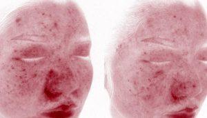 玫瑰痤疮与过敏性皮炎、痤疮/痘痘之间的区别