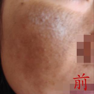 激素脸照片|激素皮炎症状|看看她们是怎么激素依赖性皮炎排毒治疗好的?