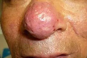 激素皮炎、玫瑰痤疮、玫瑰糠疹找不同,区别在哪你发现了吗?