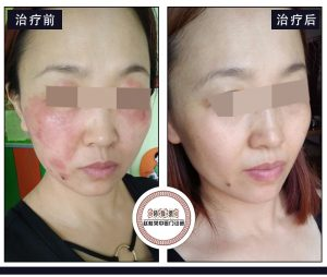 皮肤出现这些预警后,预示着即将诱发激素皮炎?