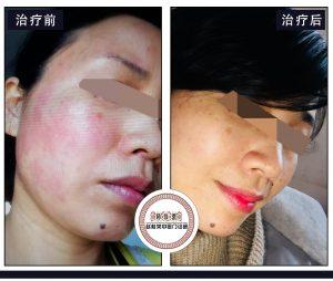 治疗激素脸最常见的3种方法,如何治疗皮炎最有效?