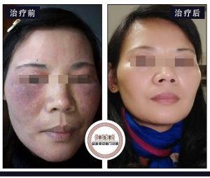 面部激素依赖性皮炎需要知道的5个常识