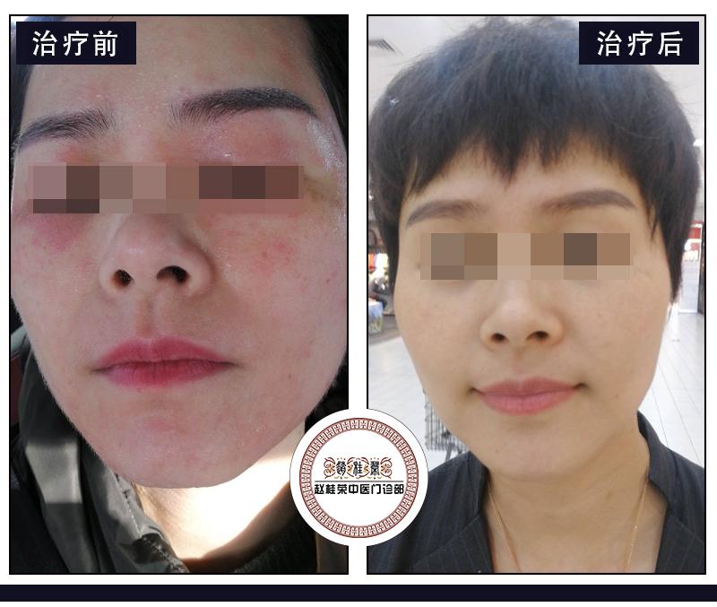 激素如何被添加到护肤品中?长期使用激素化妆品出现激素依赖性皮炎怎么办?