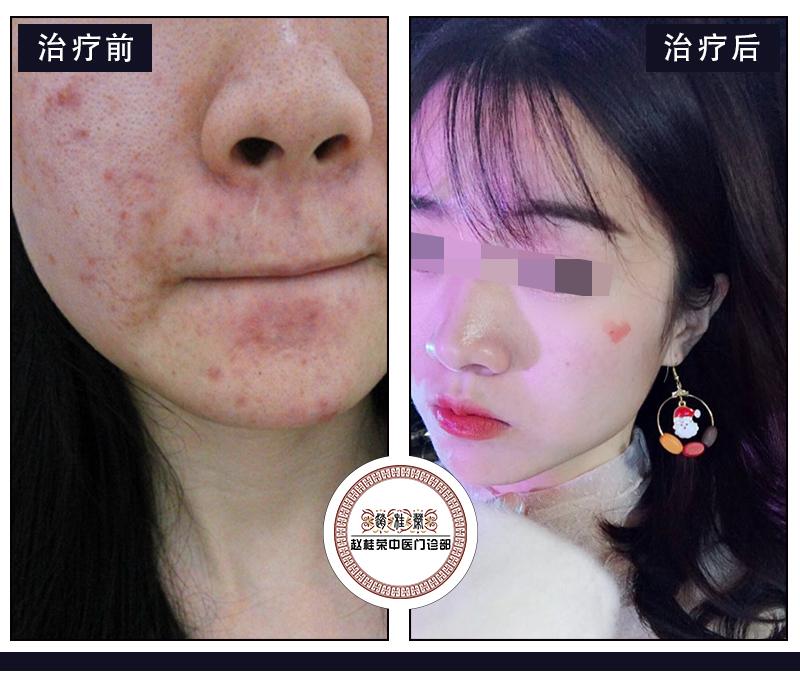 激素依赖性皮炎脸干痒红热,怎么治疗好?