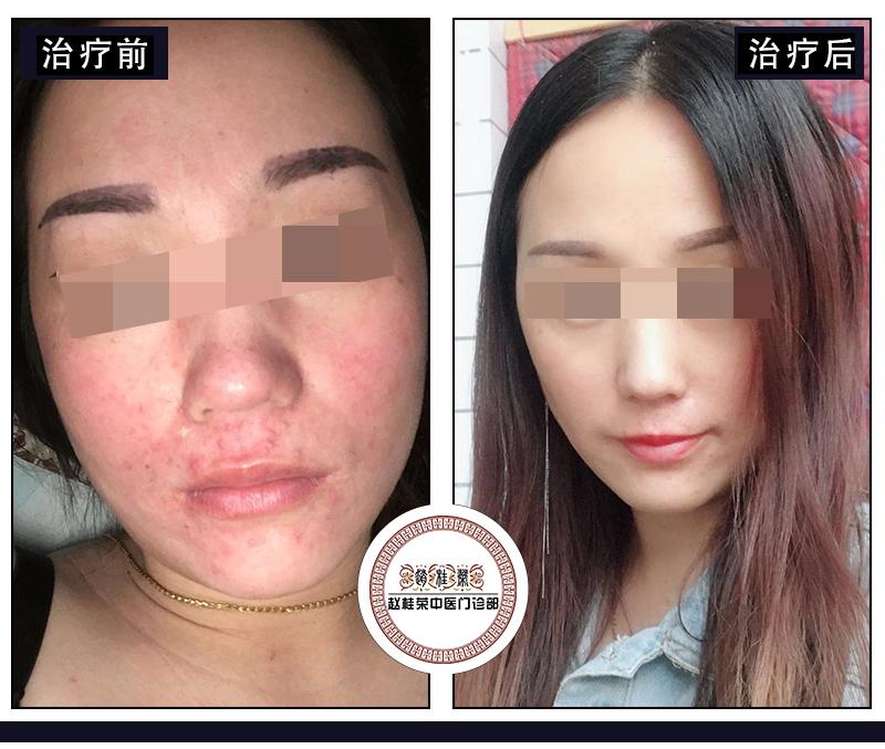 激素依赖性皮炎、激素脸红、痒用面膜管用吗?