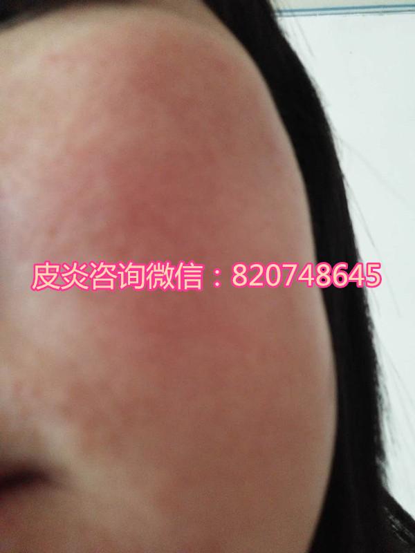 错误护肤、乱用曲咪新乳膏导致激素脸红肿面积越来越大
