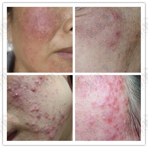油性皮肤的激素依赖性皮炎患者如何修复、护理受损肌肤?