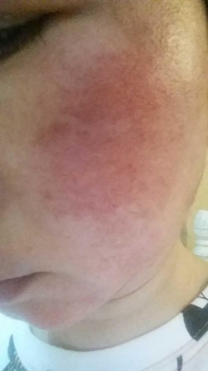 激素依赖性皮炎的病因, 怎么彻底治愈激素脸