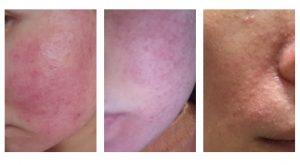 激素脸红血丝肌肤怎么修复?激素依赖性皮炎红血丝症状护理的注意事项