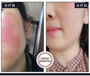 激素皮炎是皮肤屏障受损吗?如何修复受损皮肤屏障?
