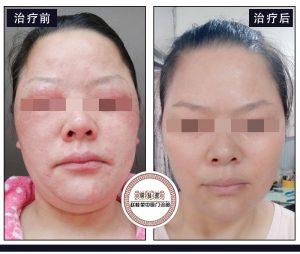 赵桂荣中医门诊部:3例激素依赖性皮炎,帮您认清激素的轨迹!