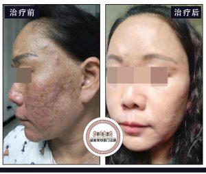 重症面部激素依赖性皮炎诊断报告:总结一个激素脸治疗方法