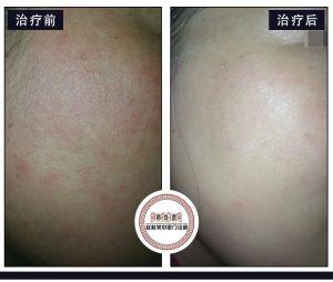 面部激素依赖性皮炎如何褪红、褪黑?