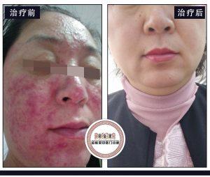 用化妆品皮肤屏障被破坏了怎么办?脸上过敏红痒发烫是激素脸吗?