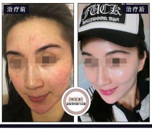 面部皮炎之激素脸,怎么治疗激素依赖性皮炎?