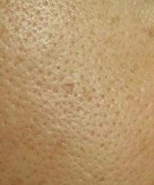 面部毛孔粗大不可逆吗?如何缩小粗大的皮肤毛孔?