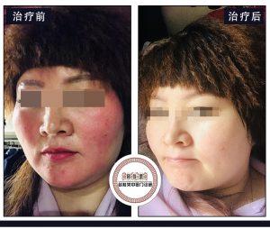 激素脸皮肤能擦宝宝润肤霜吗?