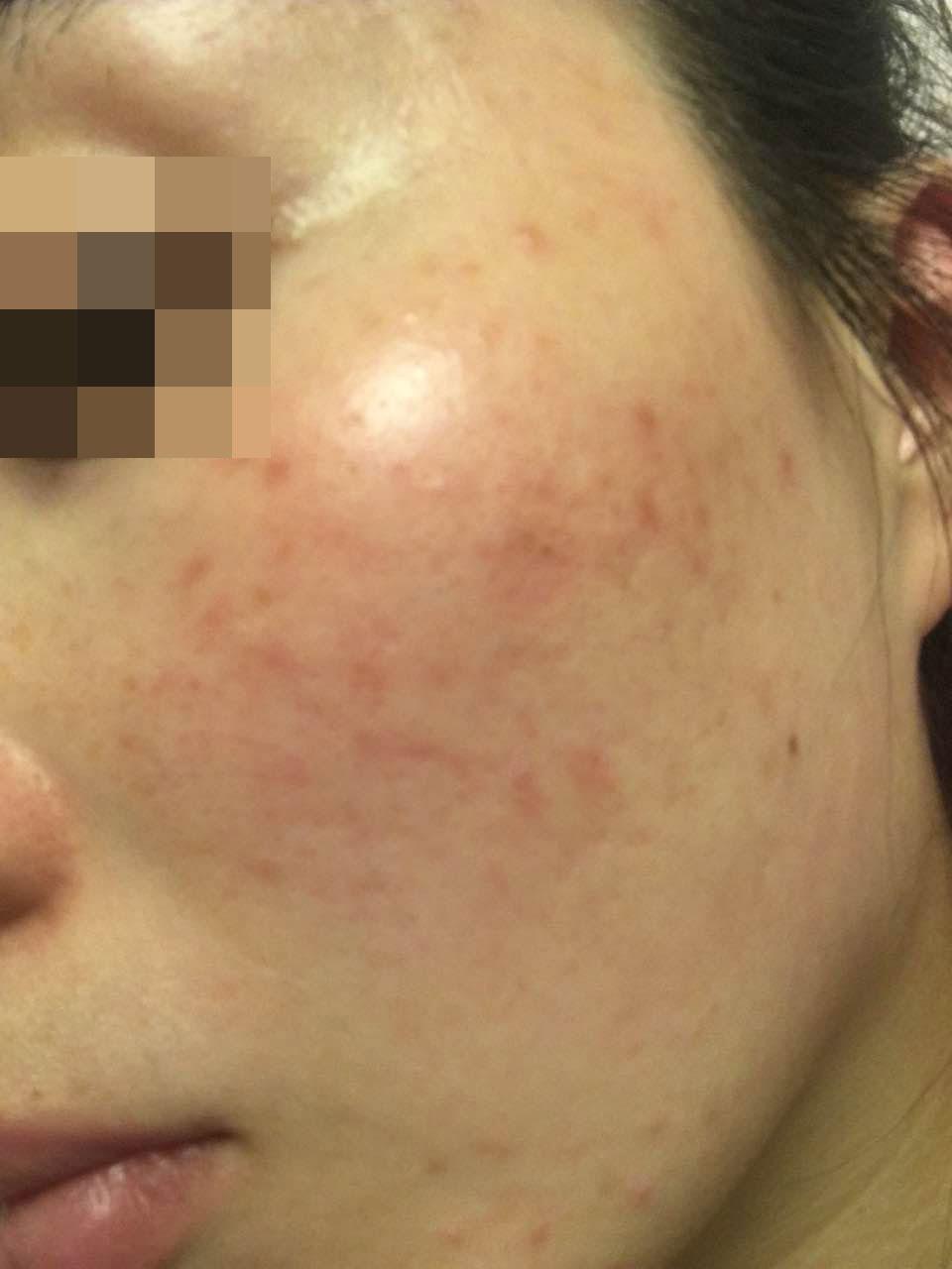 女人的脸部过敏红痒怎么自救呢