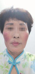 皮肤医院没治好的激素脸,在赵桂荣中医门诊治好了!