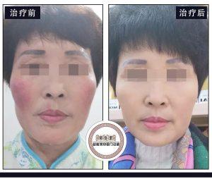 激素脸红血丝怎么治?赵桂荣能治好激素脸吗?