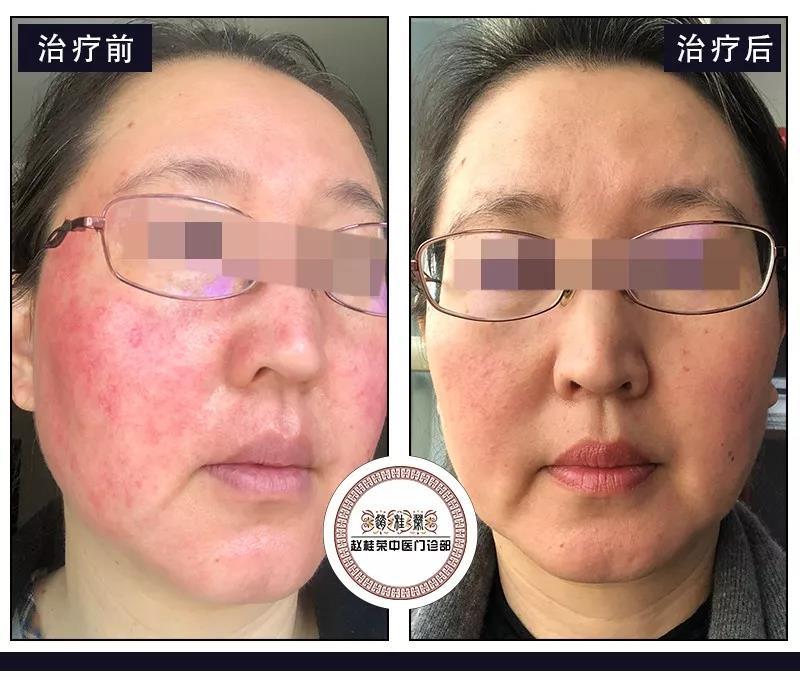 激素脸凭借皮肤自身的恢复功能可以自愈吗?