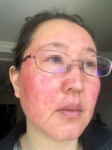 激素皮炎痊愈后,人可复美、肌肤可复白!