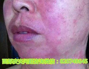 那些因为面部皮炎得了抑郁症的人,最后都怎么样了?