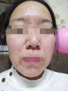 面部激素依赖性皮炎患者治愈自述,希望能帮助更多激素脸病友们