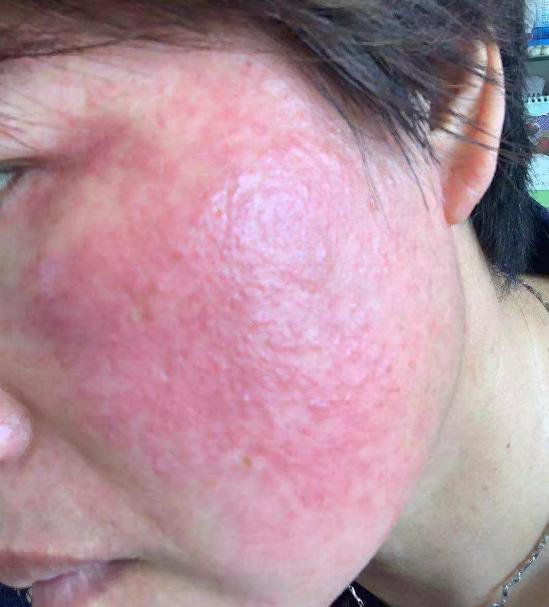 皮肤有红血丝怎么办 如何治疗皮肤红血丝
