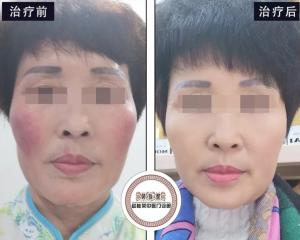 激素依赖性皮炎皮肤科专家:这个激素脸病例不一样!