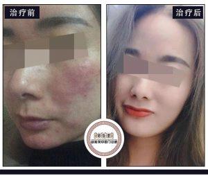 中医排毒排的是什么?激素脸排毒能治疗好吗?
