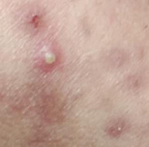 长时间戴口罩导致压痕、痘痘加重怎么办?赵桂荣中医门诊部皮肤科专家来支招