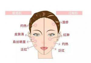 用点化妆品就过敏 皮肤专家揭示:与皮肤屏障受损有关