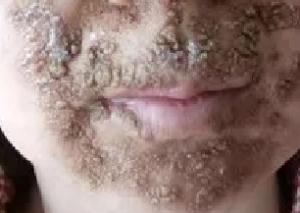 激素脸治疗一段时间,有点结痂是快好了吗?