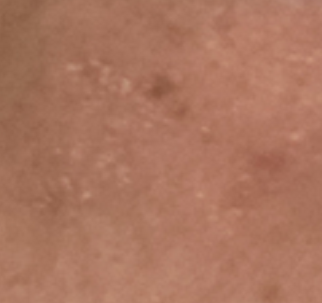 """小心皮肤对激素化妆品""""上瘾"""" 引发激素依赖性皮炎"""