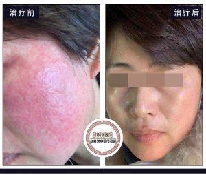 激素依赖性皮炎诊疗案例:生理盐水+庆大+苯海拉明与他克莫司软膏能治好激素脸吗