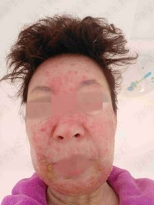 脸部皮肤过敏用皮炎平,激素脸照片严重到溃烂一样