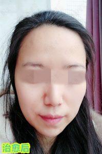 """激素依赖性皮炎治疗方法之""""扁平式""""治疗激素脸"""