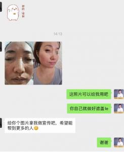 激素依赖性皮炎治疗案例:赵桂荣阐述激素脸治疗方法的两个关键点