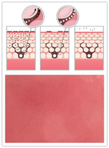 春季、换季激素脸症状易反复!激素性皮炎与皮肤免疫力有关吗?