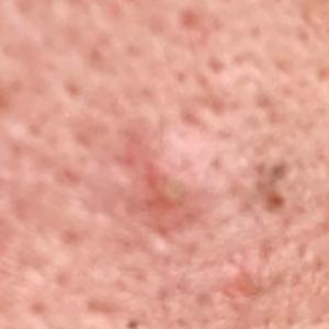 激素脸(脸部过敏)咨询治疗案例:皮肤发痒、发红、发烫、长红疹子怎么办?